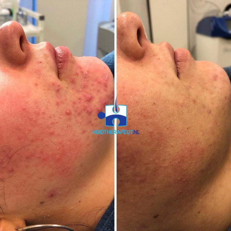 Acne behandeling - chemische peeling na zes behandelingen