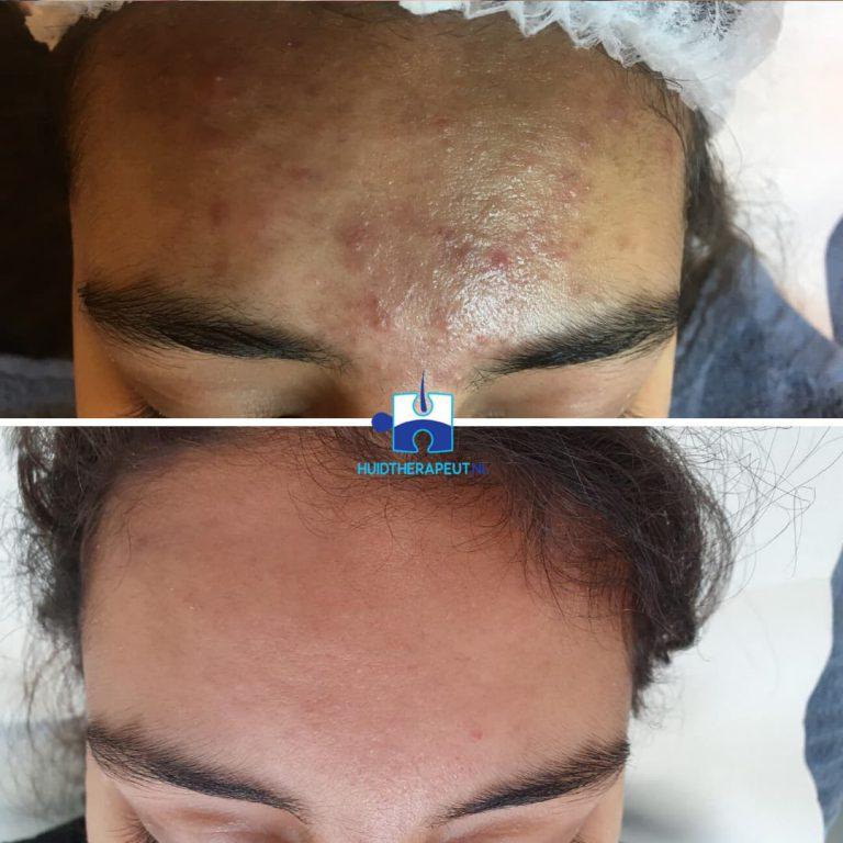 Acne behandeling - na vijf standaard acne behandelingen icm medicatie