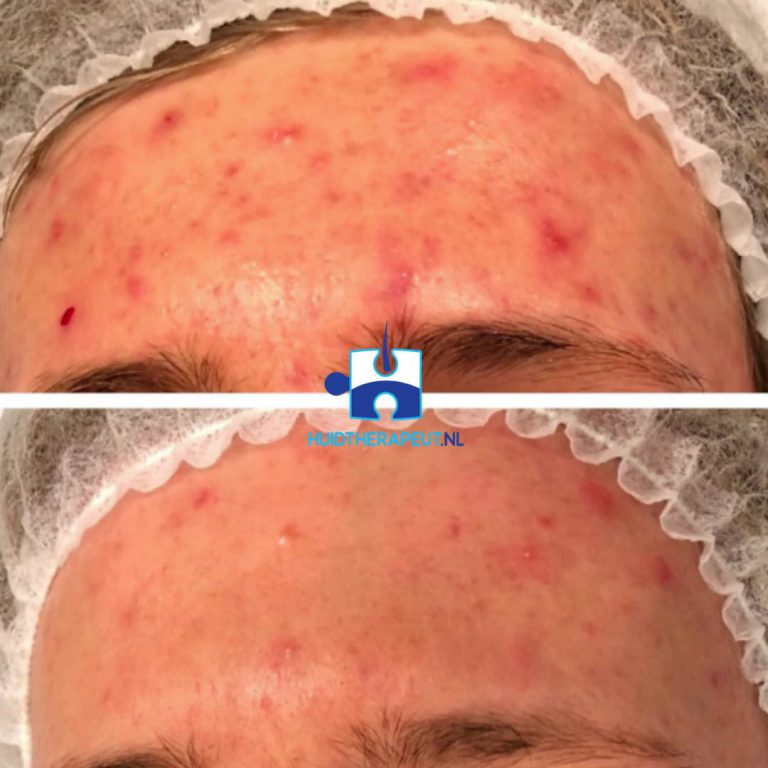 Acne behandeling - acne vulgaris