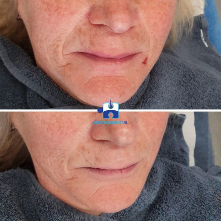 Skinrejuvenation - na drie behandelingen kin