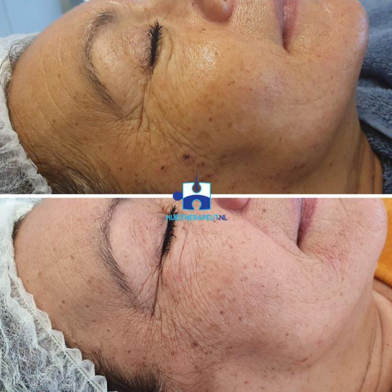 Skin rejuvenation- na drie behandelingen rechts