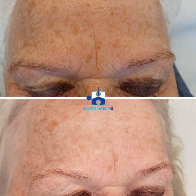 Skinrejuvenation - na drie behandelingen voorhoofd