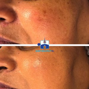 Camouflagetherapie - na één kleurbepaling