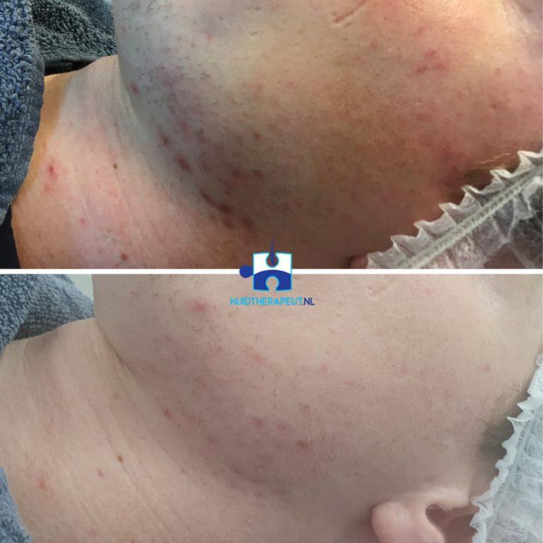 Chemische peeling - na vijf behandelingen - Acne littekens
