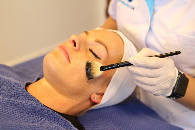 Behandelingen Chemische Peeling Lira TCA Jessner