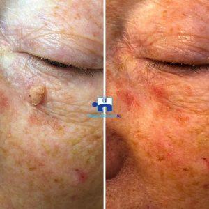 Coagualatie cauteerstift - na twee behandelingen - huidoneffenheid