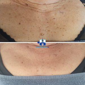 Coagualtie - na één behandeling - Dermatosis papulosa nigra