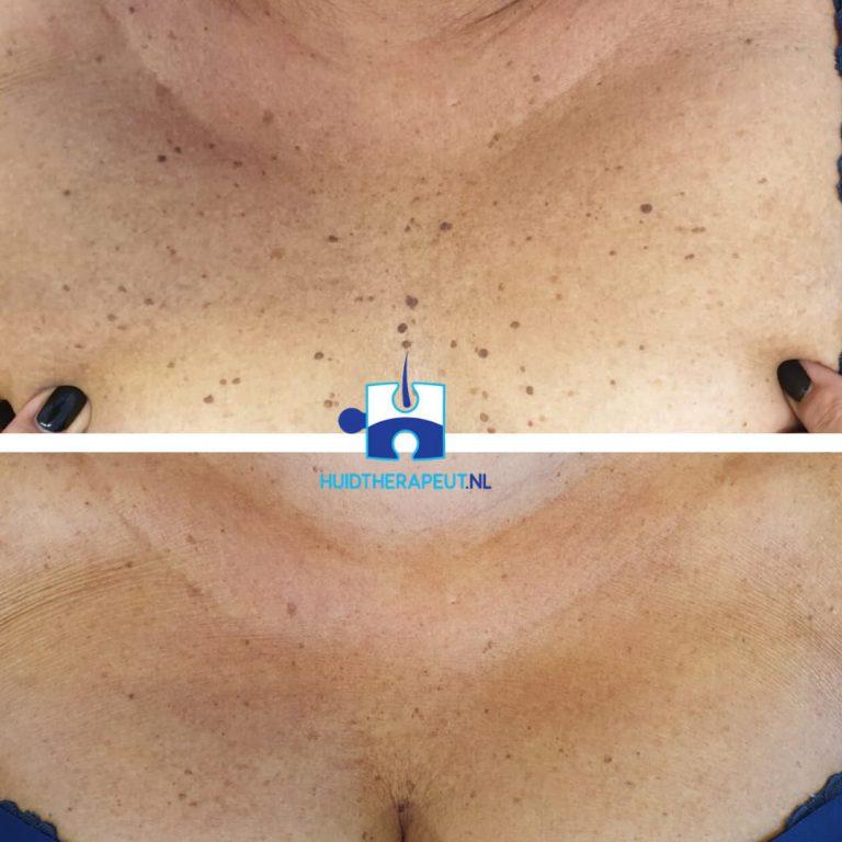 Coagulatie - na één behandeling - Dermatosis papulosa nigra