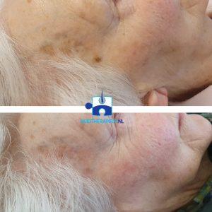 Coagualtie CryoPen - na twee behandelingen - Ouderdomsvlekken