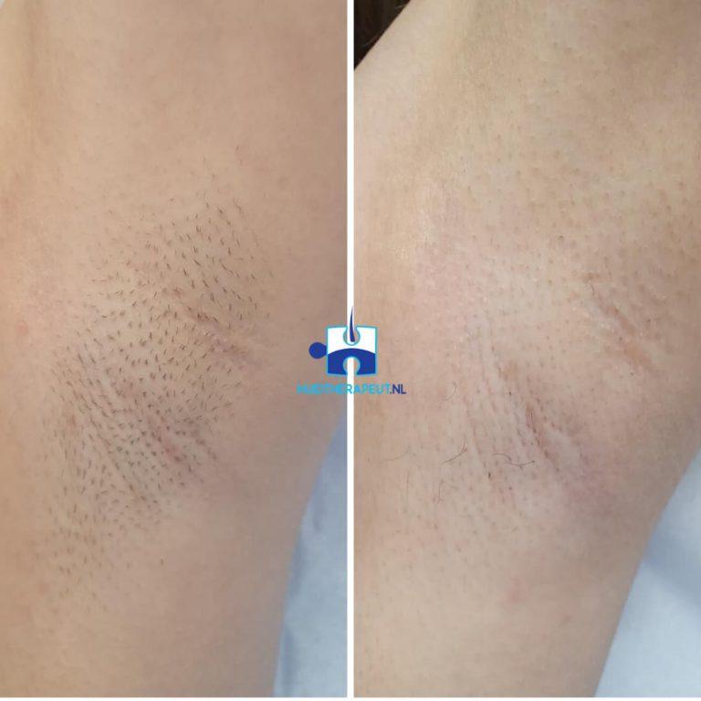 Laser ontharing - tussen resultaat na twee behandelingen