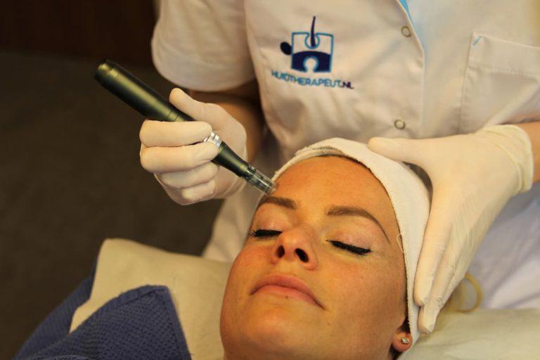 Behandelingen Microneedling Acne Littekens Grove Porien