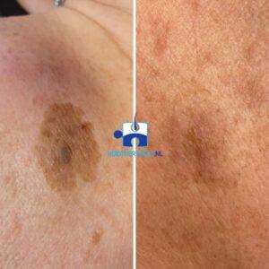 Ouderdomswrat in lentigo solaris - na drie behandelingen met cryotherapie - cryopen