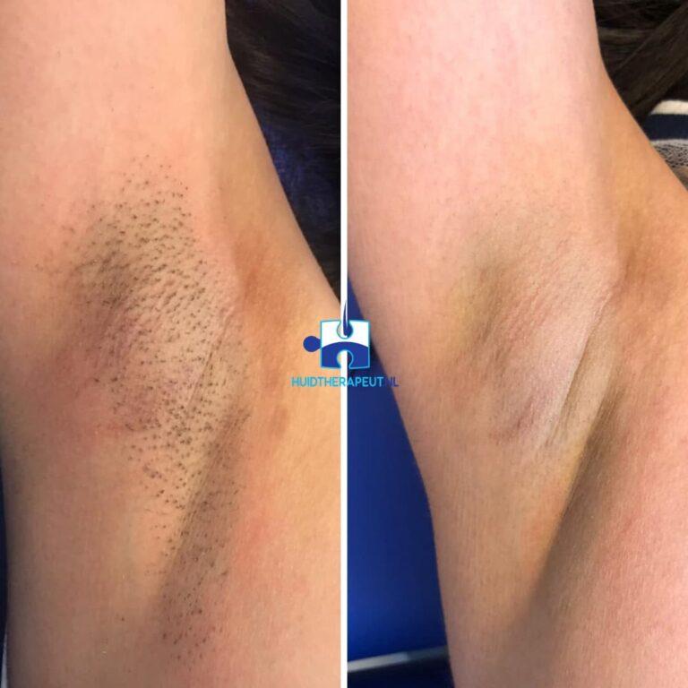Laserontharing - oksel - na vier behandelingen
