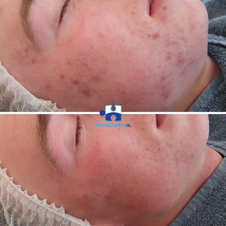 Acne littekens na 3 behandelingen chemische peelings