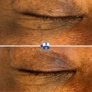 Coagulatie Steelwratjes oog resultaat na 1 behandeling