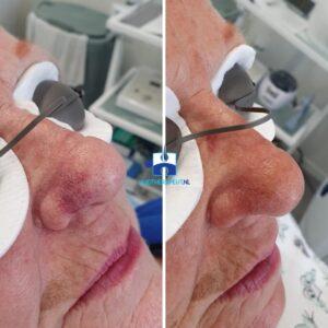 Coagulatie vaatlaser vaatjes neus resultaat na 3 behandelingen