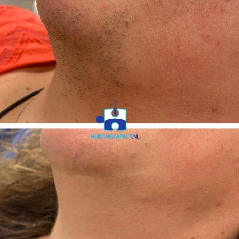 Laserontharing Gelaat resultaat na twee behandelingen