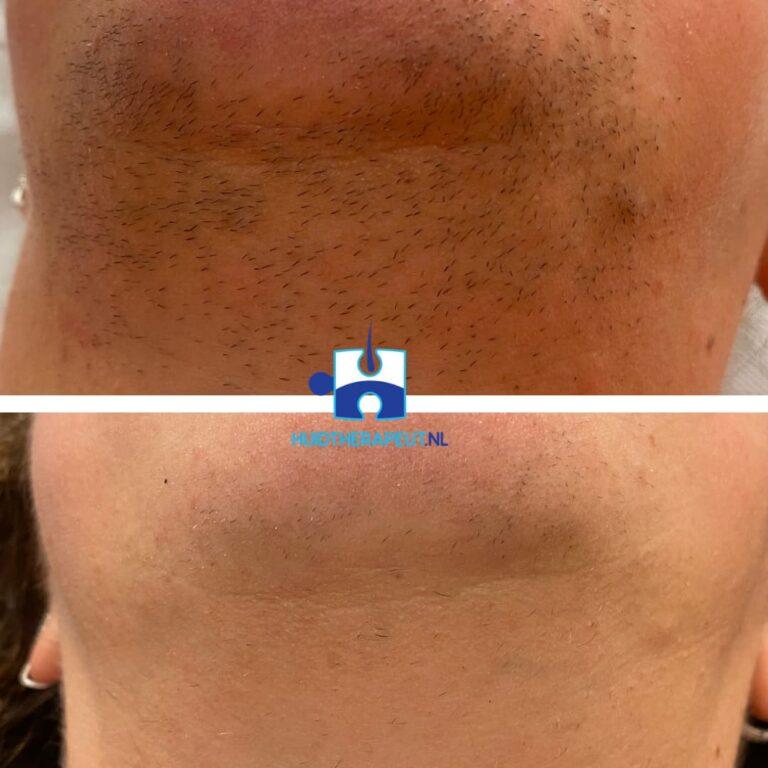 Laserontharing Resultaat na 2 behandelingen gelaat