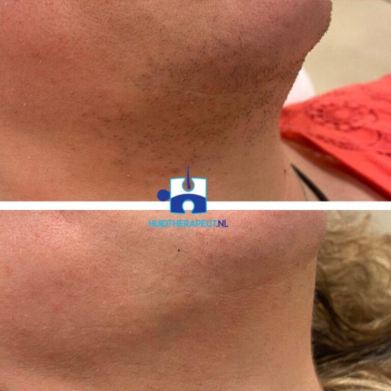 Laserontharing Resultaat na 2 behandelingen tussentijds