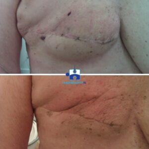 Oedeemtherapie littekentherapie resultaat na 4 maanden