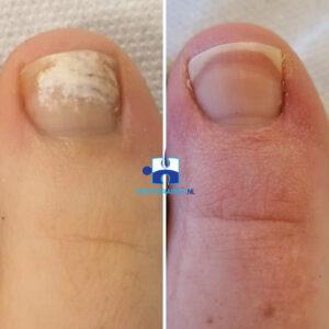 Schimmelnagels na 3 behandelingen lasertherapie