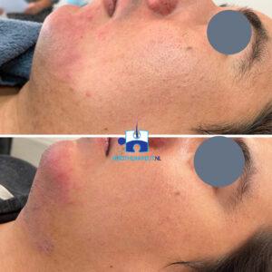 Huidverbetering na microneedling + chemische peeling