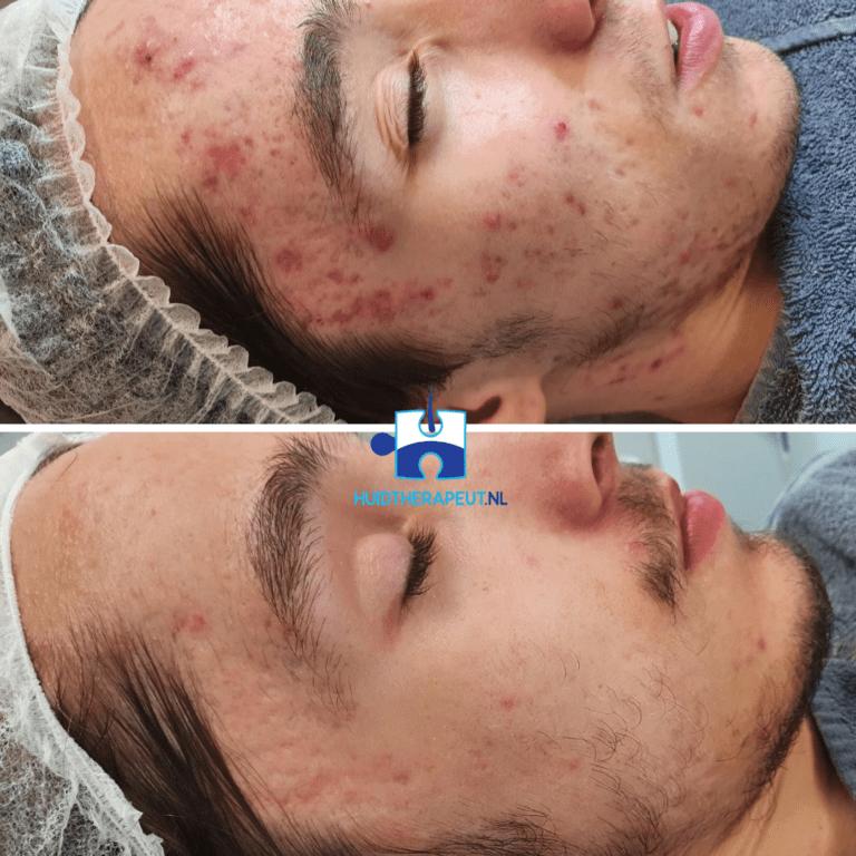 Acne - chemische peeling behandeling - resultaat na 6 behandelingen