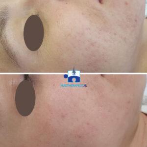 Acne-littekens - Resultaat na 5 microneedling behandelingen