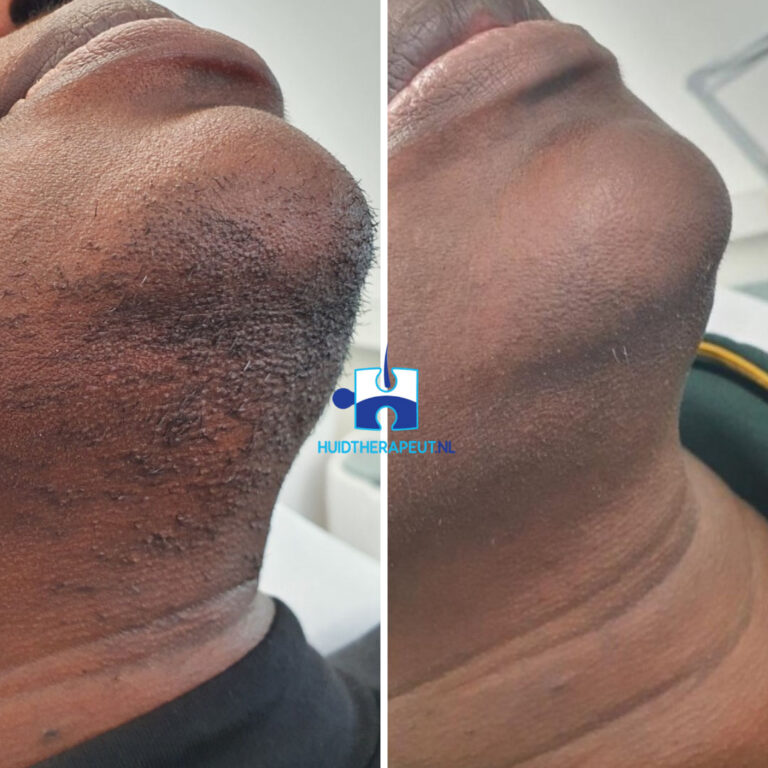 Ongewenste haargroei - resultaat laserontharing na 9 behandelingen